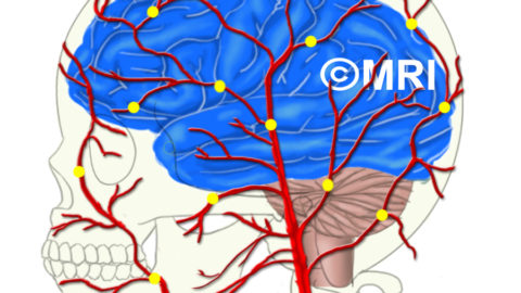 Which arteries can cause migraine pain? Inside the brain or outside the skull?
