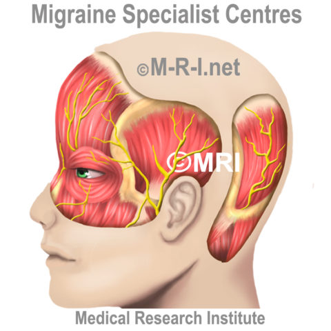 The effect of painful scalp arteries on migraine treatment