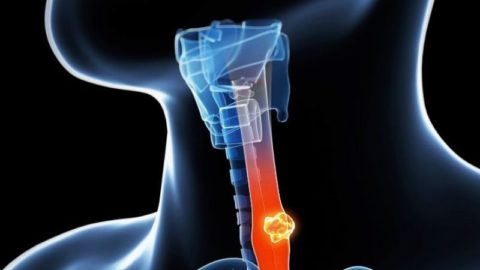 A trial on the use of three chemotherapy drugs to treat patients with Esophageal cancer