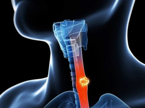 500 patients have improved survival after the use of different therapies for advanced throat cancer