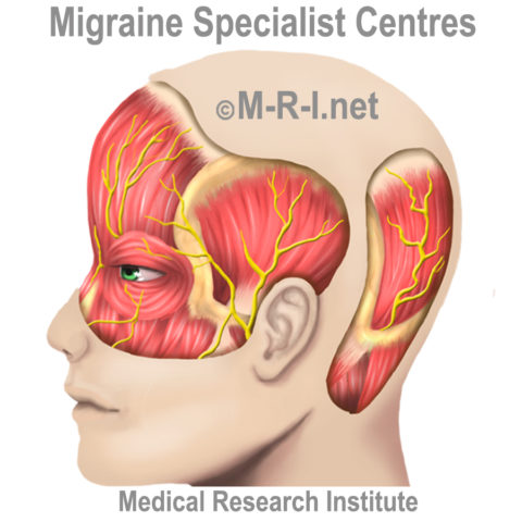 Using a splint to treat migraine by reducing its severity, and how often patients get a migraine attack.