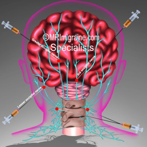 Prolonged migraine pain relief from single nerve block injection